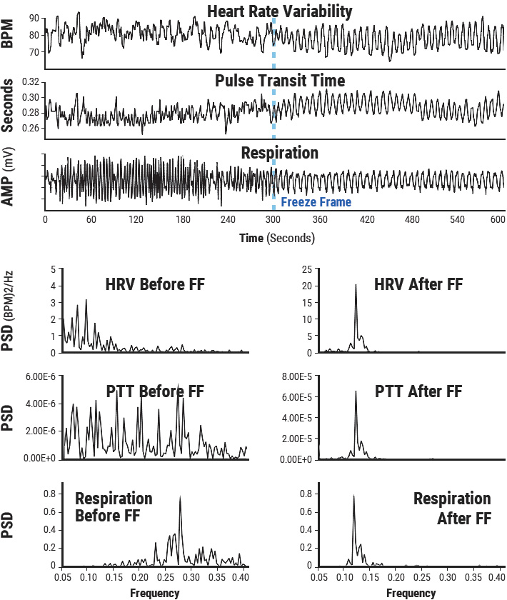 The top graphs show an individual's heart rate variability, pulse transit time and respiration patterns for 10 minutes. At the 300-second mark, the individual did HeartMath's Freeze Frame Technique and all three systems came into entrainment, meaning the patterns were harmonious instead of scattered and out of sync. The bottom graphs show the spectrum analysis view of the same data. The left-hand side is the spectral analysis before Freeze-Framing. Notice how each pattern looks quite different from the others. The graphs on the right show how all three systems are entrained at the same frequency after Freeze-Framing.